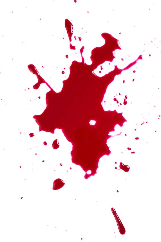 bloodstain patterns